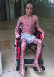 Bệnh nhân Huỳnh Văn Dì đang trong quá trình hồi phục tại Bệnh viện Chợ Rẫy