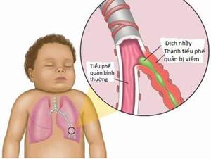 Hình ảnh trẻ bị viêm đường hô hấp.