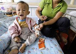 Một em bé Trung Quốc bị sạn thận do uống sữa bẩn hồi năm 2008