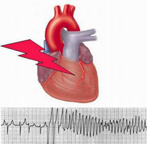 Rối loạn nhịp tim là biến chứng dễ gặp khi người cao tuổi bị sốt.