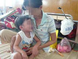Một bệnh nhi mắc bệnh Kawasaki đang điều trị tại Khoa Hô hấp Bệnh viện Nhi Đồng 1 - TPHCM