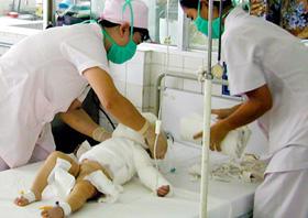 Chăm sóc trẻ bị bỏng tại BV Nhi đồng 1