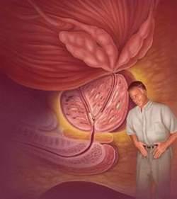Người cao tuổi bị u xơ tiền liệt tuyến dẫn đến chứng tiểu đêm.