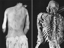 Người đàn ông 25 tuổi với căn bệnh loạn sản xơ xương hóa quá mức (FOP), và hình ảnh bộ xương của anh (trái).