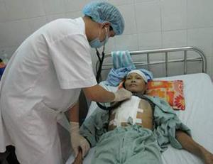 Bệnh nhân điều trị rung nhĩ bằng kỹ thuật ngoại khoa Cox- maze.