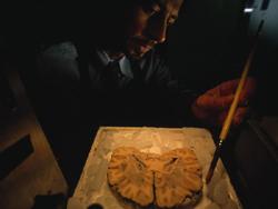 Một lát cắt não bộ