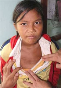 Bệnh da lạ hiếm gặp mới xuất hiện ở Quảng Ngãi đã bắt đầu lây lan.