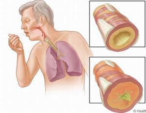 Bệnh phế quản, phổi gây ho.