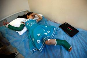 Ngày 3/6, Malak Al Shami, 6 tuổi, đã phải phẫu thuật cắt chân sau khi nhà em bị dính rocket của lực lượng trung thành với đại tá Muammar Gaddafi. Em gái Rodaina, 1 tuổi và em trai Mohamed, 3 tuổi, đã chết trong vụ tấn công. Ảnh Reuters.