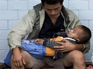 103 trẻ em đã bị nhiễm độc chì.