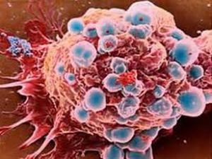 Tế bào ung thư.