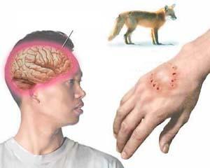 Virut dại truyền bệnh cho người qua vết cắn.