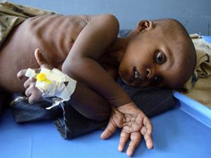 Một em nhỏ bị suy dinh dưỡng đang được điều trị tại bệnh viện ở Mogadishu, Somalia.