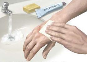 Rửa thật kỹ vết thương bằng xà phòng và đến ngay cơ sở y tế.
