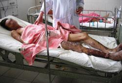 Ông Nguyễn Văn Đ. (H.Phú Vang) mắc liên cầu lợn đang được điều trị tại BV T.Ư Huế, trong tình trạng hết sức nguy kịch