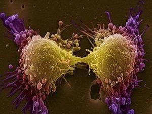 Tế bào ung thư tiền liệt tuyến. (Nguồn: lancastria.net)