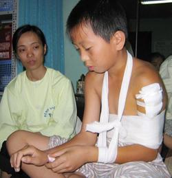 Một bệnh nhi xơ hóa cơ delta phải phẫu thuật