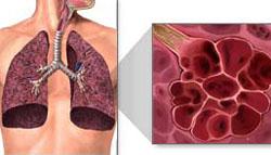 Hình ảnh phổi bị tổn thương ở người hút thuốc.