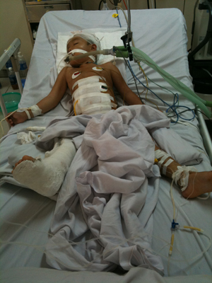 Bệnh nhân Lường Văn Quang sau khi phẫu thuật đa trấn thương tại BVĐK tỉnh